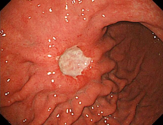 6 nhóm người có nguy cơ cao mắc ung thư dạ dày, đừng để khối u làm tổ rồi mới đi khám - Ảnh 1.