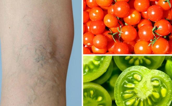 Sử dụng cà chua theo cách này sẽ chữa khỏi suy giãn tĩnh mạch trong thời gian ngắn