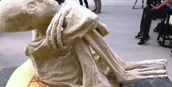 Xác ướp kì lạ sọ dài, tay 3 ngón mới được tìm thấy làm điên đầu giới khoa học 4