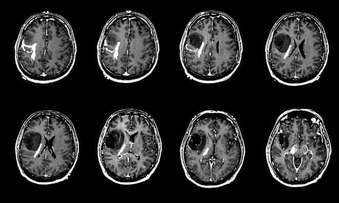 Dấu hiệu sớm nhận biết não có khối u mà ai cũng cần quan tâm để phát hiện bệnh kịp thời - Ảnh 6.
