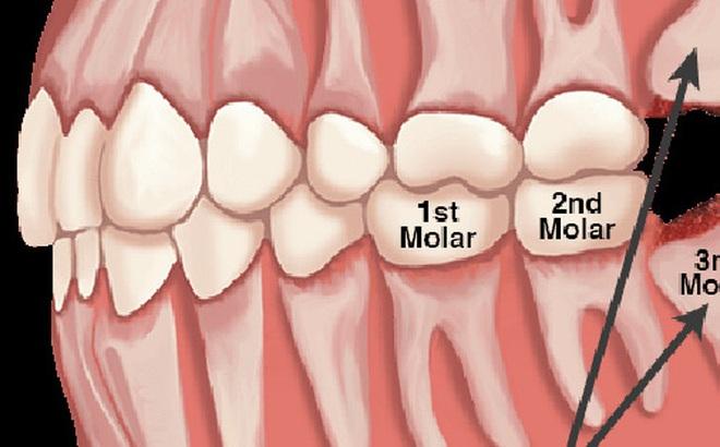 """Sở hữu """"thứ"""" này trong người, bạn sẽ không bao giờ cảm thấy """"đau phát điên"""" vì mọc răng... ngu"""