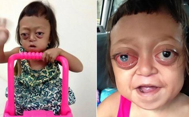 """Bé gái mắc bệnh không thể ngủ bị mẹ bán cho đám """"ma cô"""", ngày ngày chịu đòn để đi ăn xin"""