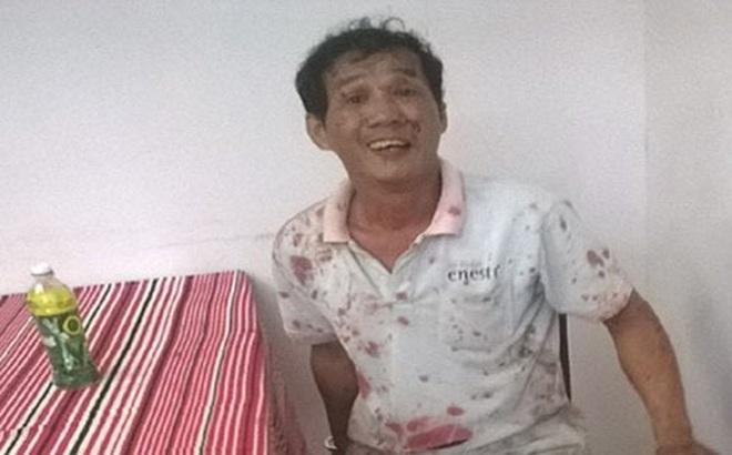 Tranh giành làm đại ca giang hồ, một thanh niên bị đâm trọng thương