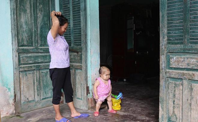 Xót xa cô gái 27 tuổi mang thân hình của đứa trẻ lên ba