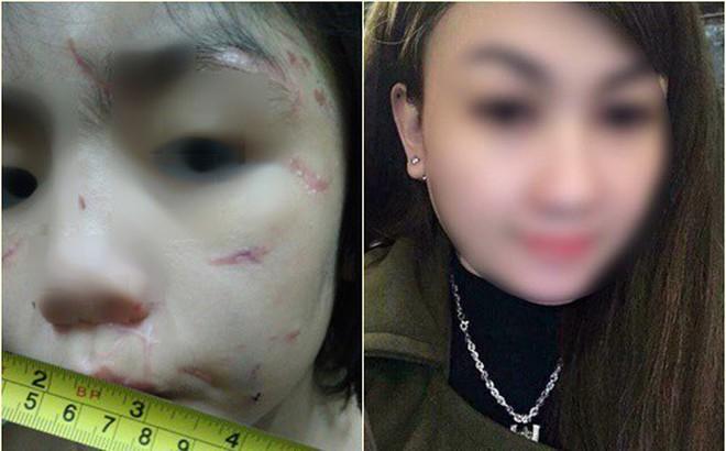 """Mẹ kế cháu bé 10 tuổi bị bạo hành: """"Tôi nghĩ tôi đánh để bố cháu không đánh cháu"""""""