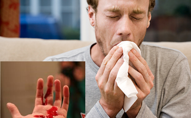 3 dấu hiệu của ung thư phổi: Chuyên gia nhắc dù chỉ 1 dấu hiệu nhỏ cũng không nên bỏ qua