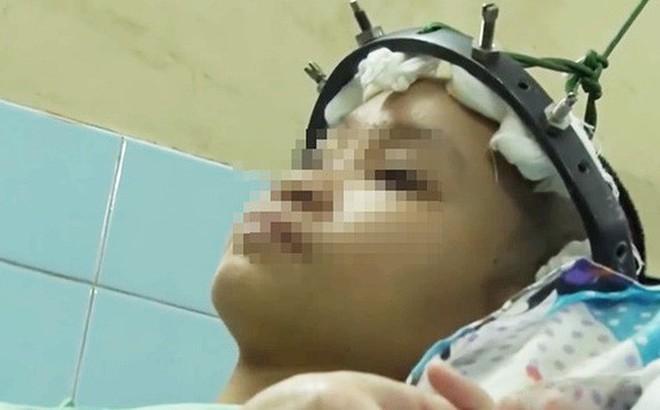 TP.HCM: Cột sống ngực vẹo 111 độ, lưng bé gái 12 tuổi cong như hình chữ S