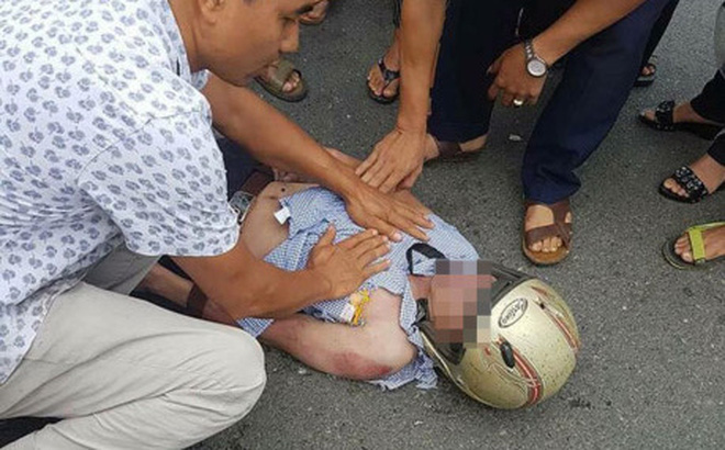 Nam thanh niên bị sét đánh trúng mặt khi đang đi đường: Tiên lượng xấu