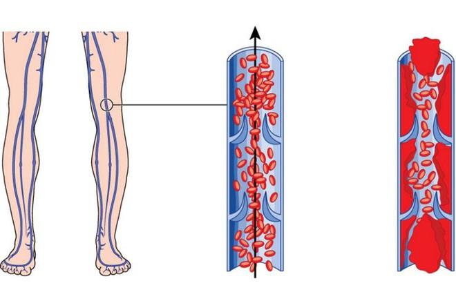 6 dấu hiệu cảnh báo có cục máu đông trong cơ thể