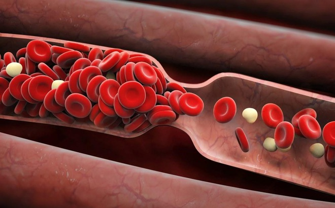 6 dấu hiệu cảnh báo có cục máu đông trong cơ thể mà bạn không được phép bỏ qua