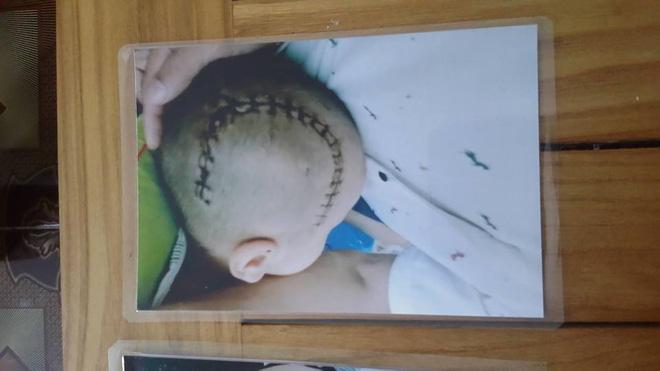 Bé trai gần 4 tuổi não bị tụ máu khi đi học ở trường mầm non - Ảnh 2.