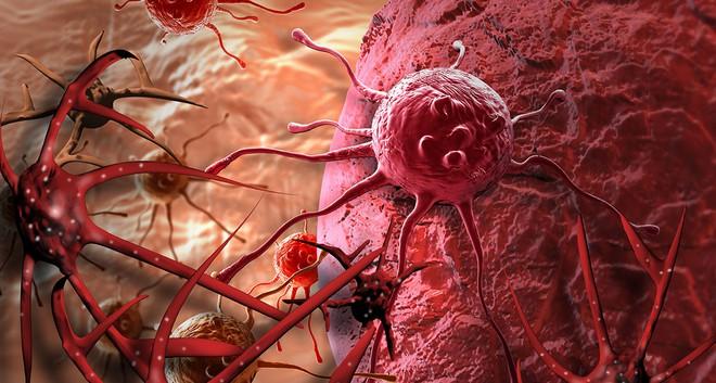 Bác sĩ viện K cảnh báo: Thực phẩm chúng ta ăn ảnh hưởng đến nguy cơ ung thư - Ảnh 4.