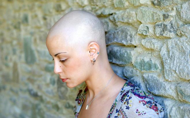 Tóc rụng khi điều trị ung thư: Đừng quá lo!