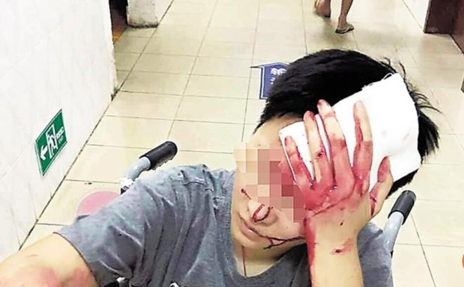 Phàn nàn về dịch vụ giao hàng, thực khách Trung Quốc bị hành hung chảy máu đầu