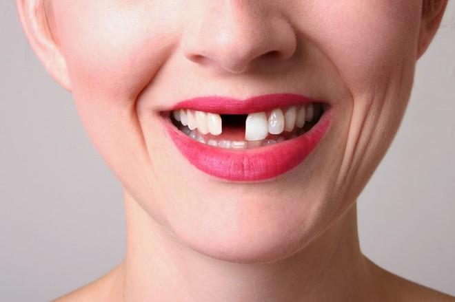 Xử lý sứt răng do ngã - ảnh 1