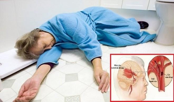 Nữ bệnh nhân đột quỵ, chảy máu não được cứu sống bất ngờ - Ảnh 2.