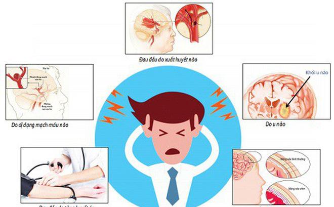 Nhận diện những cơn đau đầu nguy hiểm