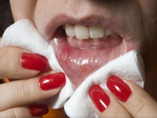 Những cảnh báo về sức khỏe khi tiết nhiều nước bọt - Ảnh 6.