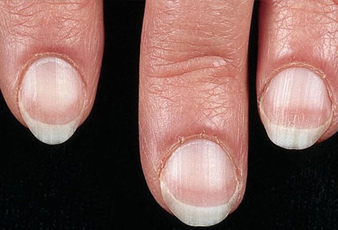 Móng tay tiết lộ những dấu hiệu về sức khỏe của bạn - Ảnh 1.