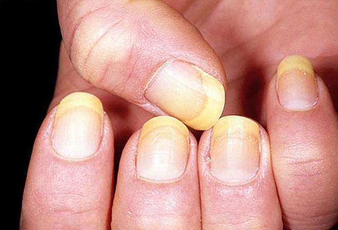 Móng tay tiết lộ những dấu hiệu về sức khỏe của bạn - Ảnh 3.