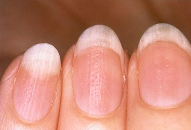 Móng tay tiết lộ những dấu hiệu về sức khỏe của bạn - Ảnh 5.