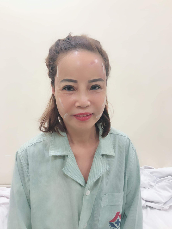 Cô dâu 62 tuổi đăng ảnh mới nhất sau phẫu thuật, chồng chia sẻ vẫn chưa thể nói chuyện - Ảnh 1.