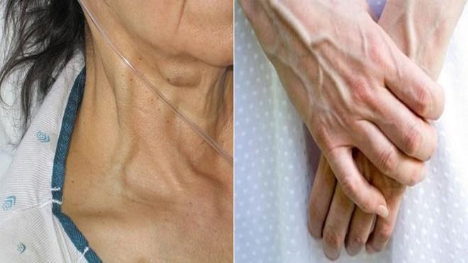 Cơ thể nổi gân xanh cảnh báo điều gì về sức khỏe? - Ảnh 1.