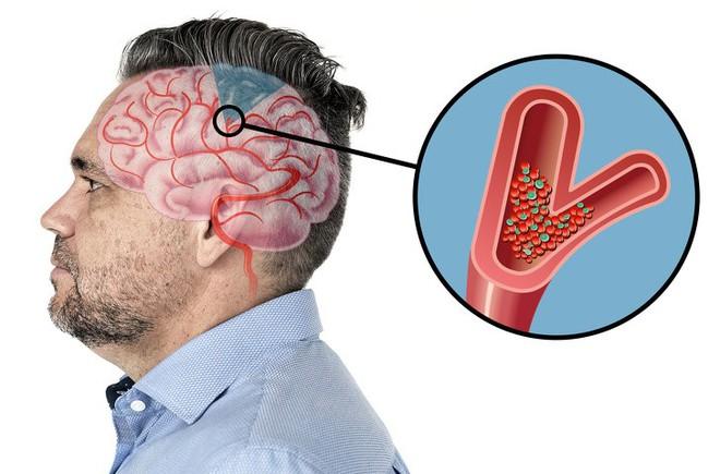 6 dấu hiệu cảnh báo một cơn đột quỵ sắp xảy ra: Hãy nắm rõ cách xử trí đột quỵ này - Ảnh 8.