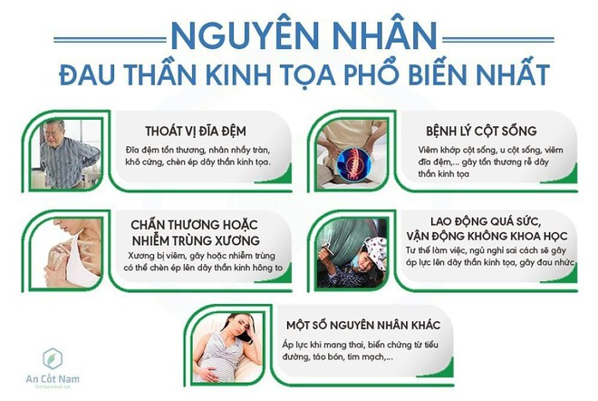 Đau thần kinh tọa là gì ? Nguyên nhân, triệu chứng và cách chữa trị hiệu quả - Ảnh 1.