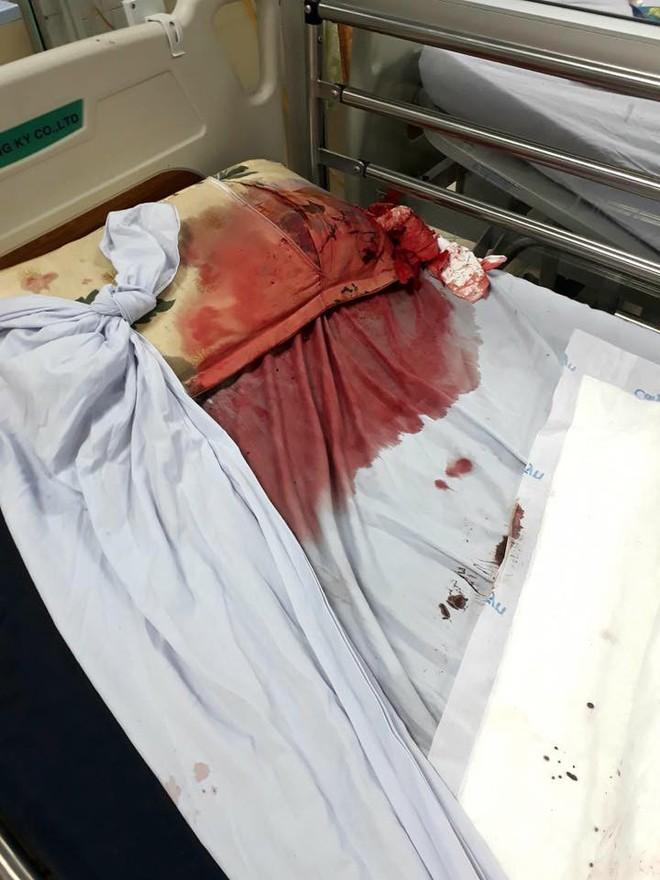 Bức hình máu me gây ám ảnh và câu chuyện đau lòng từ một người bác sĩ! - Ảnh 1.