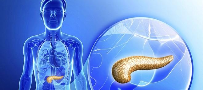 Sốt, đau bụng đi kèm các dấu hiệu này: Hãy cảnh giác cao độ với bệnh ung thư tuyến tụy - Ảnh 3.