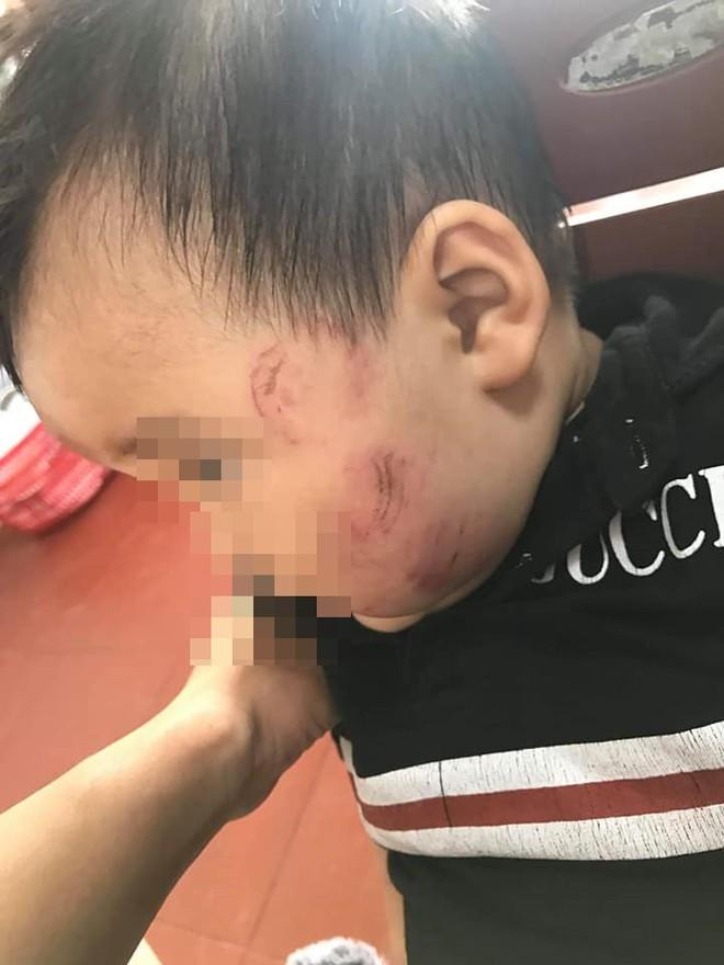 Mẹ đăng đàn tố nhà trường bạo hành con, những bức ảnh đính kèm khiến dân mạng phẫn nộ - Ảnh 4.