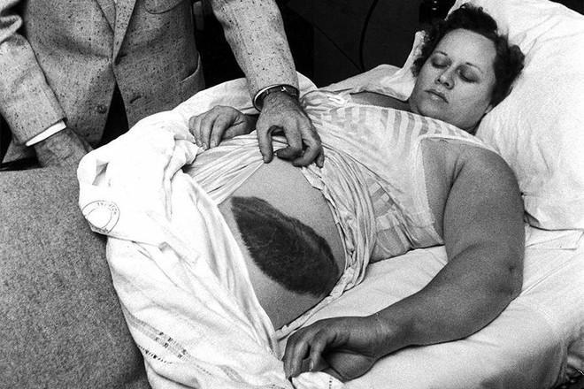 Bà Ann cùng vết bầm lớn trên hông sau khi bị thiên thạch rơi trúng.