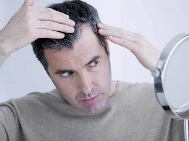 3 cột mốc quan trọng nhất nam giới cần bồi bổ: Gợi ý cách ăn uống hiệu quả bạn nên làm - Ảnh 2.