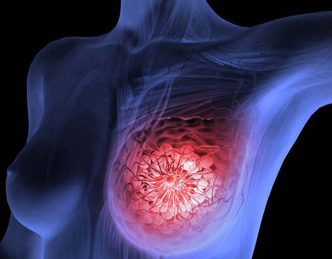 BS cảnh báo nhiều trường hợp 20 tuổi đã mắc ung thư vú: 4 bước tự khám vú phụ nữ cần biết - Ảnh 1.