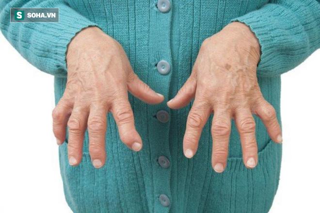 Viêm khớp dạng thấp rất khó chữa: 9 liệu pháp tự nhiên hiệu quả nhất bạn nên tham khảo - Ảnh 1.