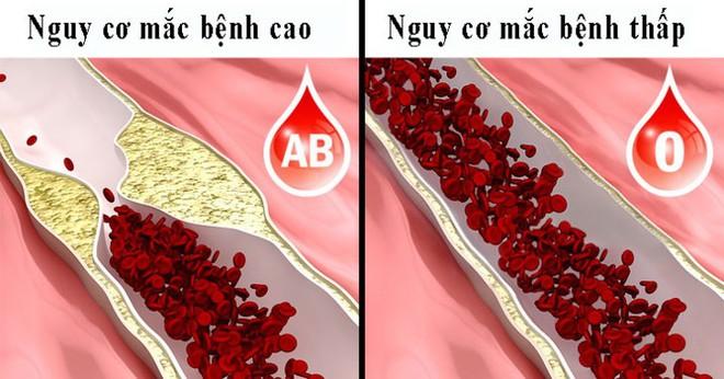 8 điều người nhóm máu O nên biết - Ảnh 6.