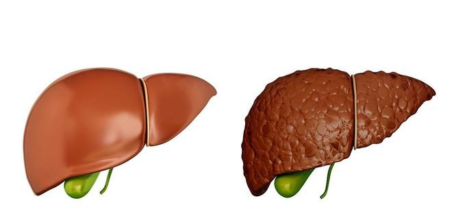 Khi có sự thay đổi này xảy ra ở ngực: 90% khả năng bạn đã bị xơ gan, hãy nhanh đi khám - Ảnh 2.