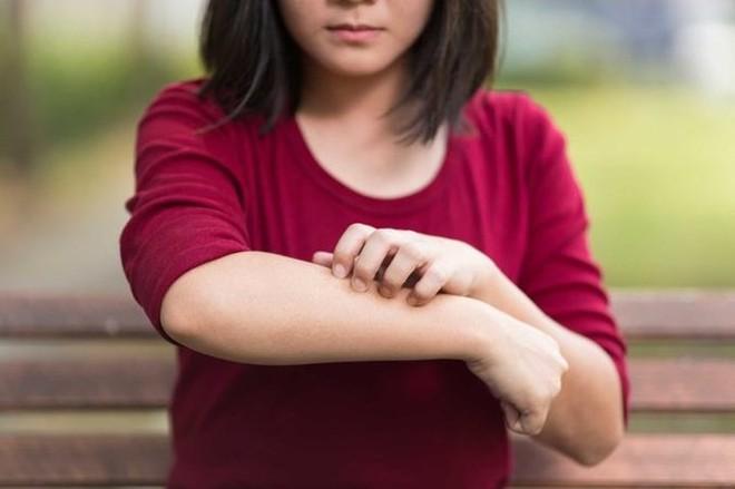 7 dấu hiệu chứng tỏ đường ruột có vấn đề - Ảnh 6.