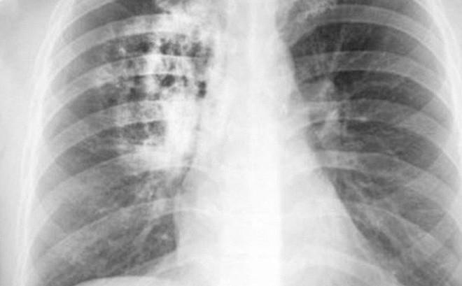 """Tỷ lệ mắc ung thư phổi ở Việt Nam rất cao: """"Thủ phạm"""" chính là một thói quen đơn giản"""