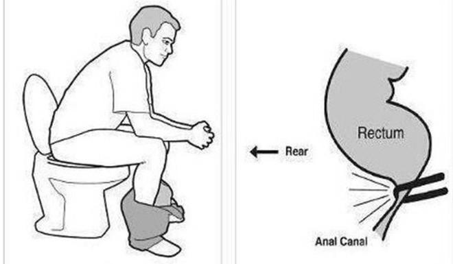 Sai lầm phổ biến trong tư thế đi vệ sinh có thể gây bệnh - Ảnh 1.
