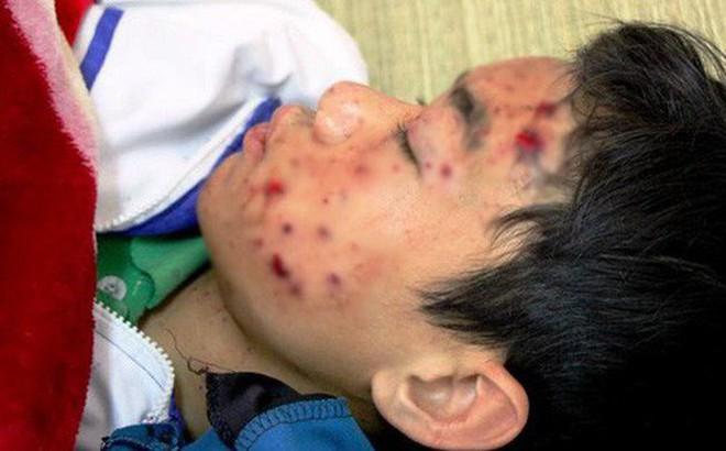 Nổ điện thoại khi đang sạc, nam sinh lớp 8 bị thương nặng