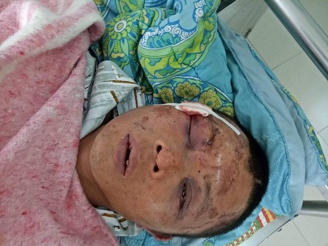Người đàn ông nghi bắt cóc bé gái 14 tuổi bị đánh biến dạng mặt, gãy toàn bộ răng - Ảnh 1.