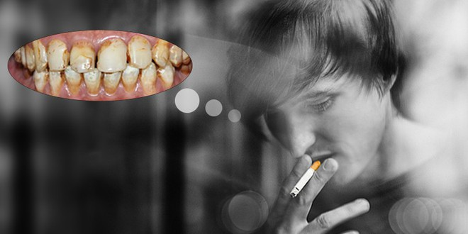 90% người Việt sâu răng, viêm lợi, mất răng... do thói quen sai lầm này: Bạn có mắc phải? - Ảnh 2.