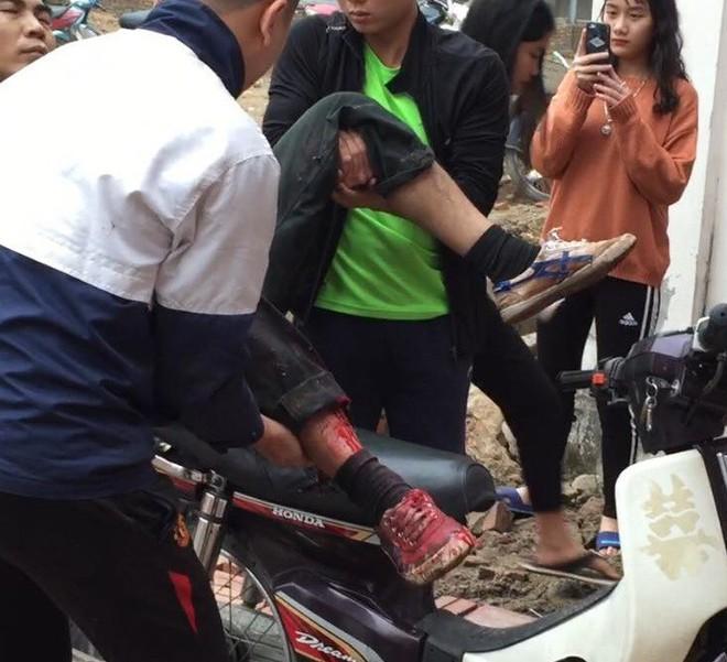Nhặt vỏ đạn sau vụ nổ ở Bắc Ninh, người đàn ông bị nổ nát bàn tay - Ảnh 1.