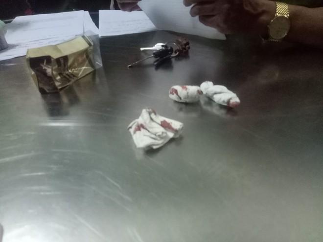 Lộ clip phóng viên bị đánh dã man trong quán bar ở Đà Nẵng - Ảnh 3.