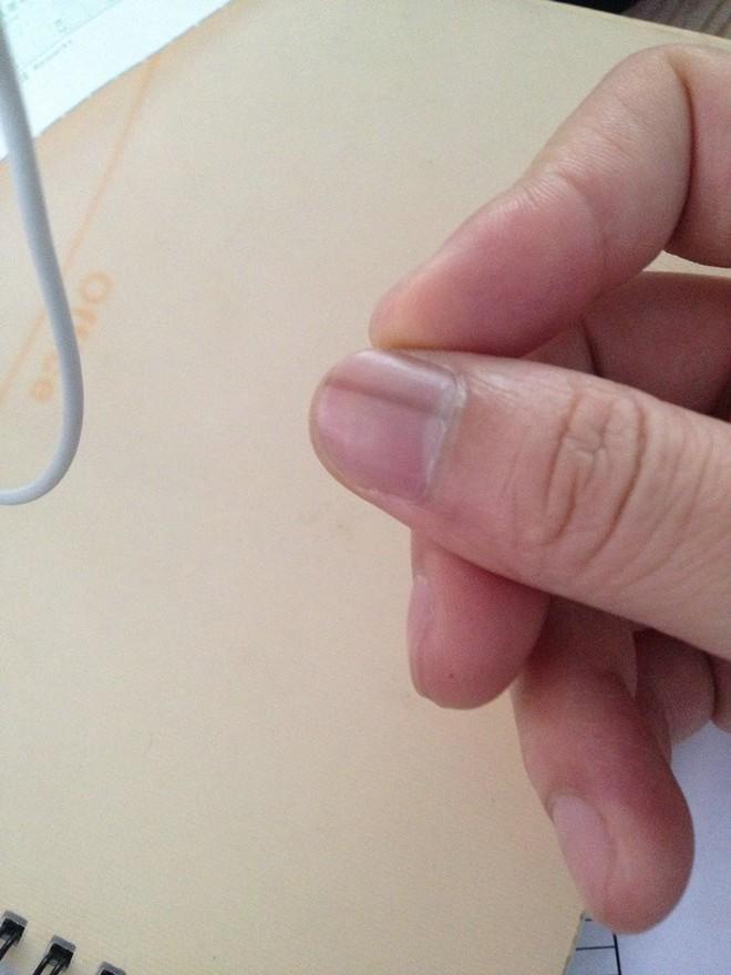 Nếu gan sinh bệnh hoặc nhiễm độc, móng tay sẽ có 3 thay đổi bất thường dễ nhận biết - Ảnh 5.