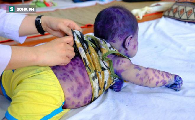 BS Nhi khoa cảnh báo sai lầm của nhiều bà mẹ khi trẻ mắc thuỷ đậu