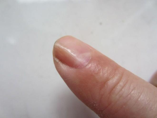 Nếu gan sinh bệnh hoặc nhiễm độc, móng tay sẽ có 3 thay đổi bất thường dễ nhận biết - Ảnh 1.