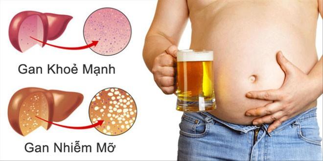 5 thói quen còn phá huỷ gan nhanh không kém uống rượu bia - Ảnh 2.